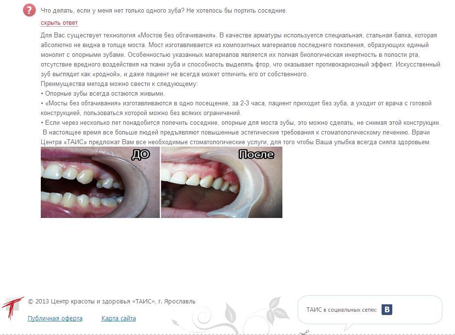 Лечение зубов ярпортал