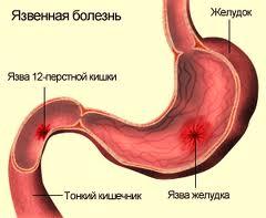 Гастроэнтерология: язвенная болезнь