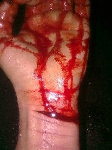 картинки порезанных вен на руке